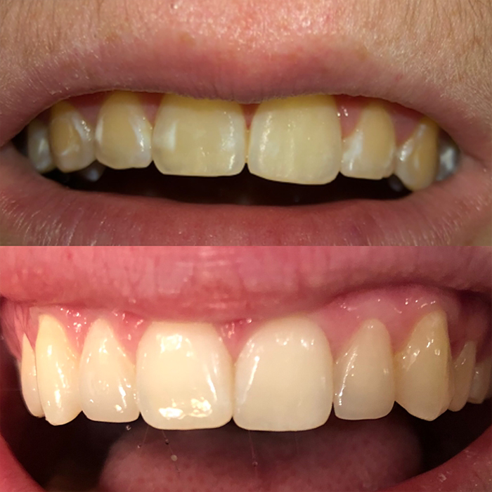 White spot removal after braces.